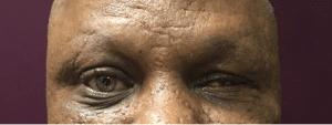 prosthetic example